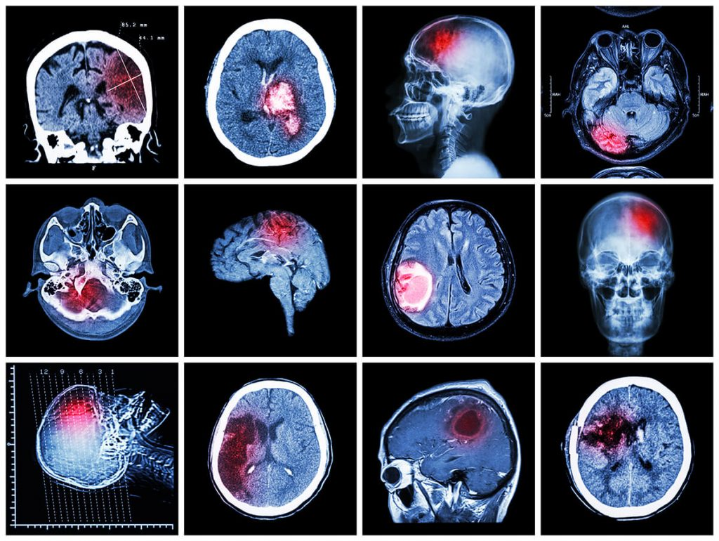 brain injury xrays