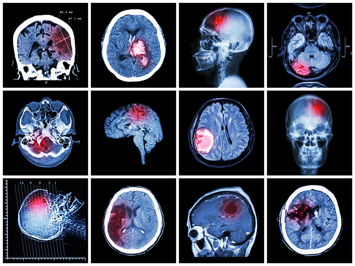 brain injury accidents