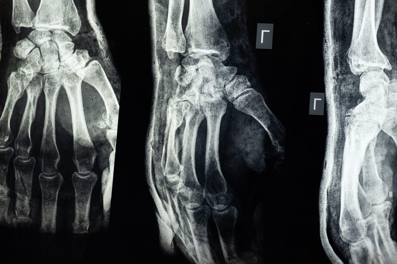 negligence injury cases